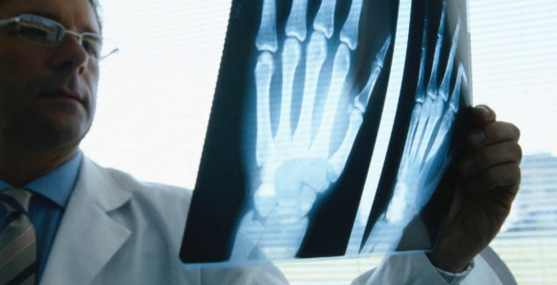 osteoporosis 8 consejos