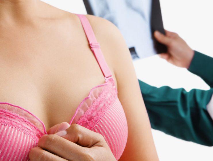 displasia mamaria