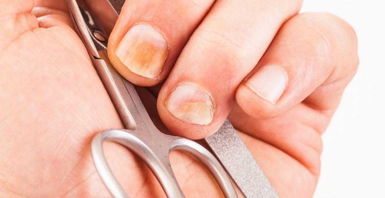 Tipos de hongos en los pies y cómo curarlos