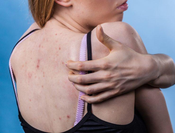 cómo curar la alergia en la piel