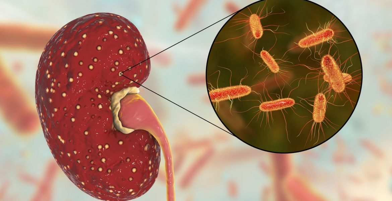 sindrome urémico hemolítico sintomas contagio