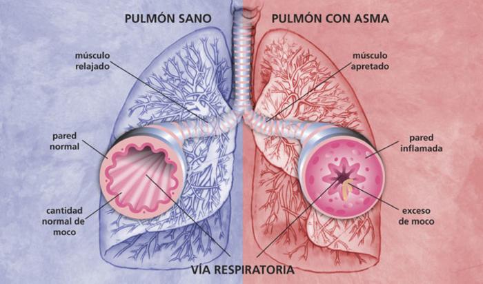 asma pulmones bronquios