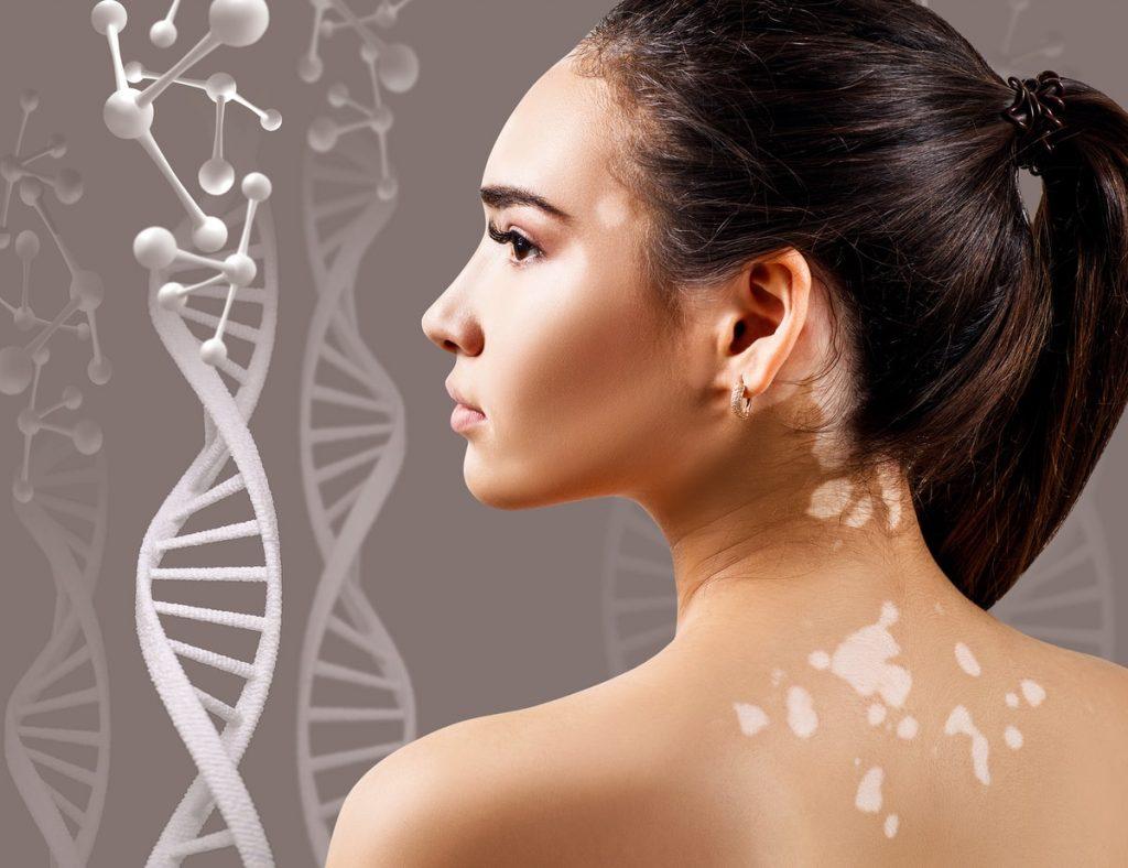 irritacion en la piel