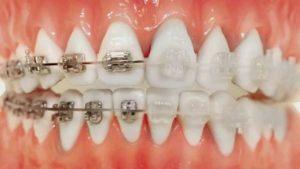 ortodoncia brackets
