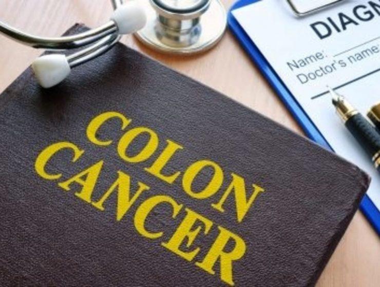 cancer de colon 1200