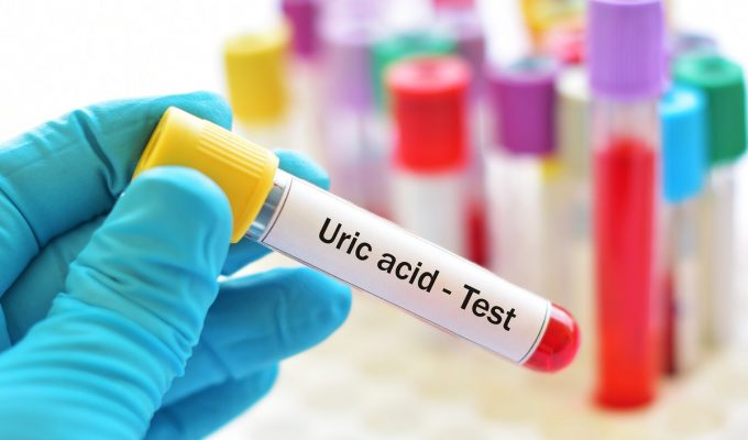 como bajar el acido urico